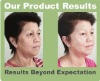 Best herbal Hair regrowth Treatment product - stop hair loss in 7 days