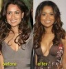 Breast reduction. Call +27 (011) 766 5498