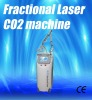CO2 Fractional Laser for Pregnant Lines Remvoal