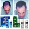 Product for men hair loss, best anti hair loss product Yuda pilatory